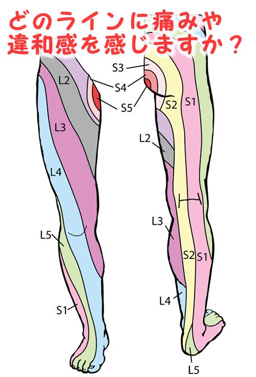 腰の痛みはどこからデルマトーム図で確認!
