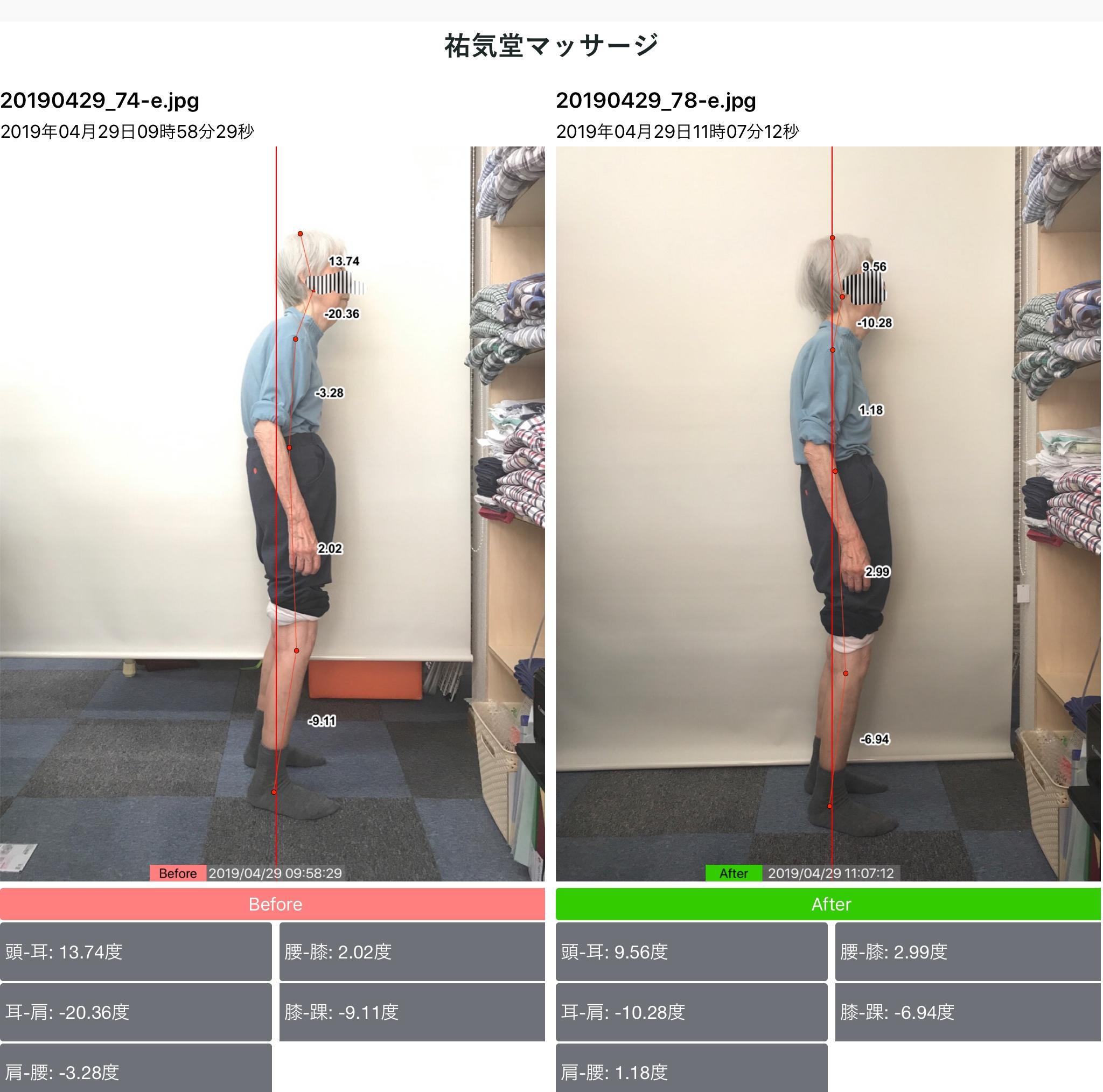 90歳代女性の姿勢分析